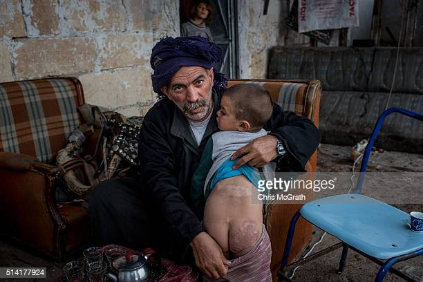 Abd Aljabbar Sharoukh, a sheep herder and Syrian refugee who came to Kilis two years ago shows off the scars on his sons back and bottom sustained...