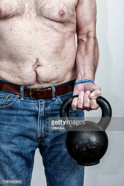 abdomen scar man wearing cancer wristband lifting kettlebell - colorectal cancer stock pictures, royalty-free photos & images