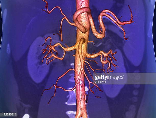 abdominal aorta, 3d ct scan - abdominal aorta stock pictures, royalty-free photos & images