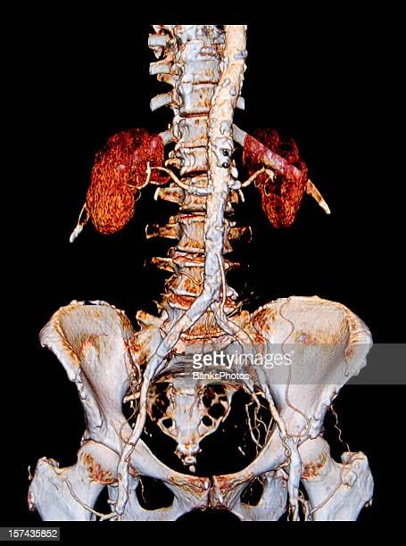 3D Abdominal Aorta CAT Scan Showing Extensive Atherosclerosis