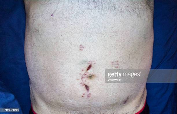 Abdominal Emergency Cancer Surgery Incision Scar Close-Up Selfie