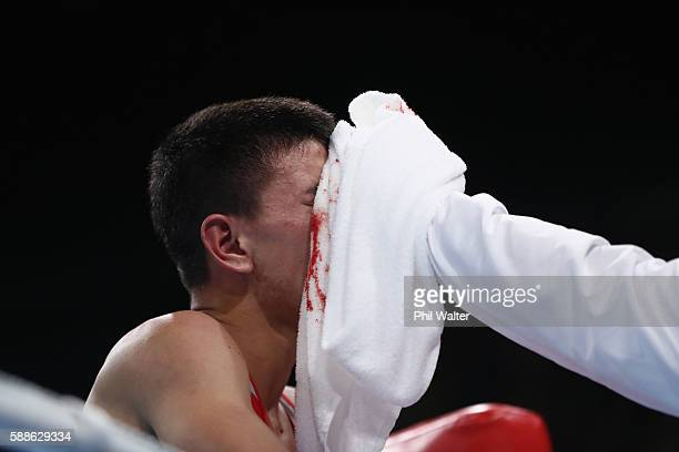 Abialkhan Zhussupov of Kazikstan suffers a cut in his fight with Pat McCormack of Great Britain in their Mens Light Welterweight bout on Day 6 of the...