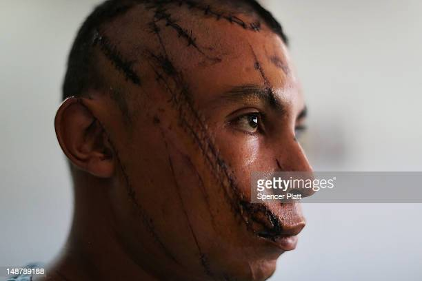 Abner Soul Estrada Palma recovers in a hospital ward after being recently attacked with a machete on July 19 2012 in Tegucigalpa Honduras Honduras...