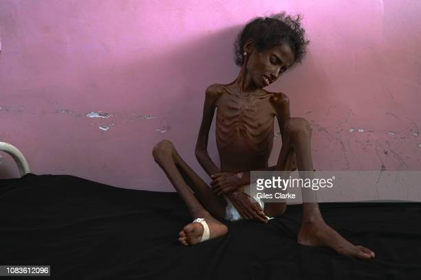 Abrar aged 12 was admitted to the hospital on December 4th 2018 having been driven overnight from her hometwon and frontlines of Al Hudaydah the...