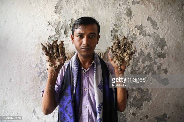 Abul Bajandar age 29 who suffers from rare skin dosorder known as tree man syndrome awaits for treatment at the Dhaka Medical College Hospital in...