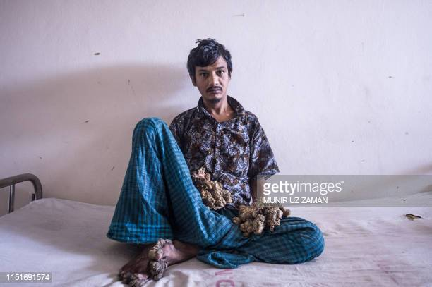 TOPSHOT Abul Bajandar dubbed Tree Man for massive barklike warts on his hands and feet sits at Dhaka Medical College Hospital in Dhaka on June 24...