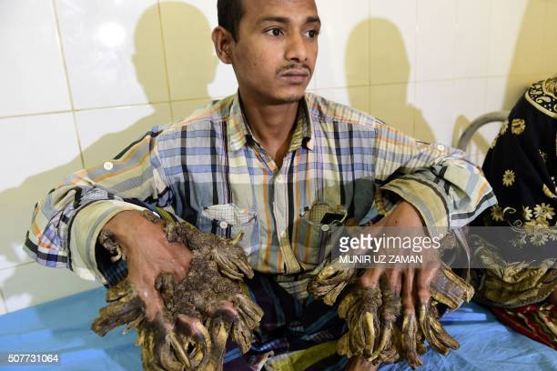 Abul Bajandar dubbed Tree Man for massive barklike warts on his hands and feet sits at Dhaka Medical College Hospital in Dhaka on January 31 2016 A...