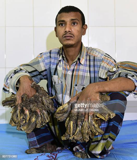 Abul Bajandar dubbed 'Tree Man' for massive barklike warts on his hands and feet sits at Dhaka Medical College Hospital in Dhaka on January 31 2016 A...