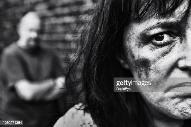 abused and bruised woman with battering partner in background - black eye stock pictures, royalty-free photos & images