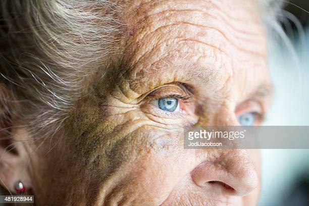 abused caucasian senior woman with black eye - bejaard stockfoto's en -beelden