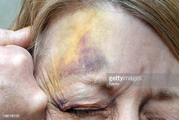 abused woman and man's fist against her battered face - bruise stock photos and pictures