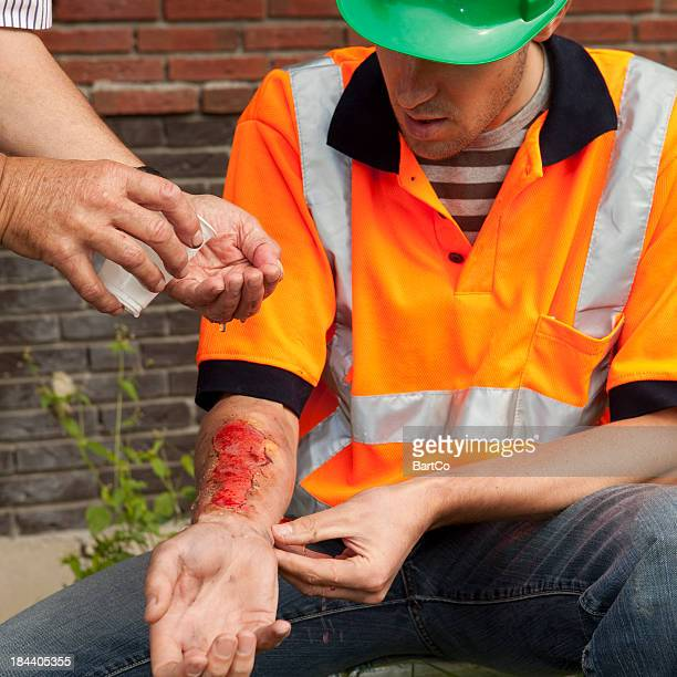accident on the his job at daytime. gramacing. - burn injury stock photos and pictures