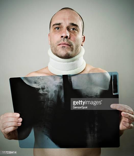 accidente - hombre golpeado fotografías e imágenes de stock