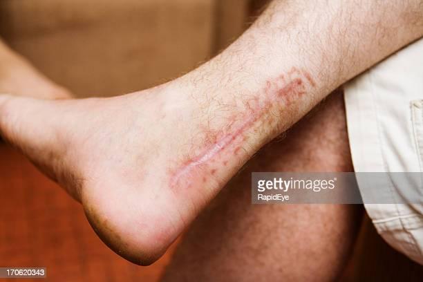 cicatriz do tendão de aquiles - cicatriz imagens e fotografias de stock