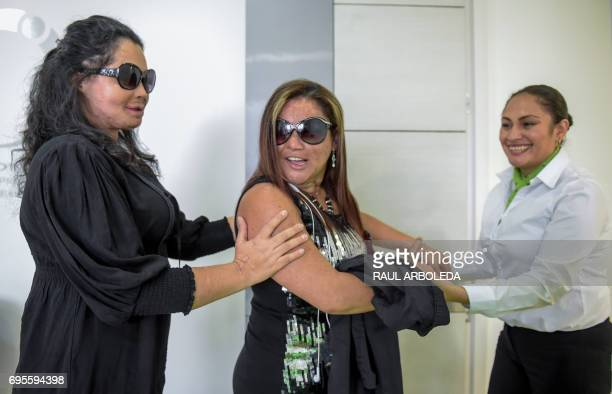 Acid attack survivors Luz Mendoza and Silvia Julio Jimenez wait to see Dr Alan Gonzalez in Bogota Colombia on June 7 2017 Dr Alan Gonzalez is a...