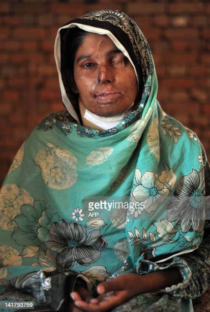 Acid attack victim Asiya Bibe poses at her residence at Bahawalpur district in Multan on March 16, 2012. Acid attacks are among the worst forms of...