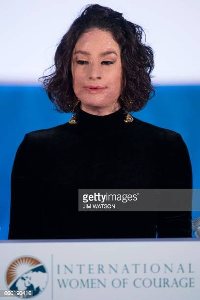 Acid burn victim Natalia Ponce de Leon of Colombia speaks during the International Women of Courage ceremony at the State Department in Washington DC...