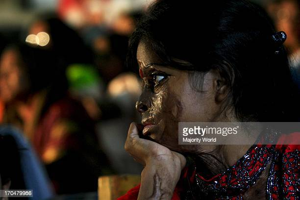 Acid throwing is one of the most vicious forms of violence in Bangladesh The majority of the victims are women Reported reasons for the acidthrowing...