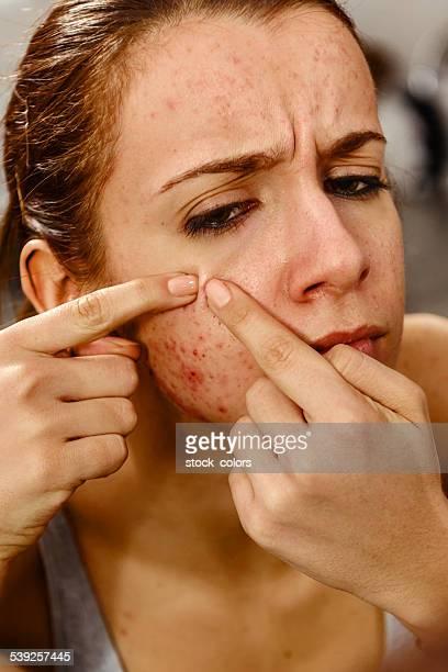 acne portrait