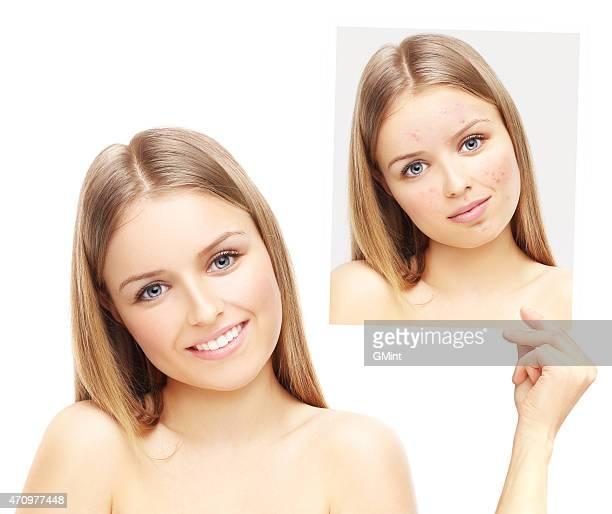 acne.happy ragazza adolescente che mostra una foto di te stesso con acne - acne rosacea foto e immagini stock