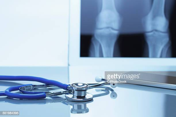 Acoustic stethoscope and smartphone on office desk with digital tablet displaying knee xray