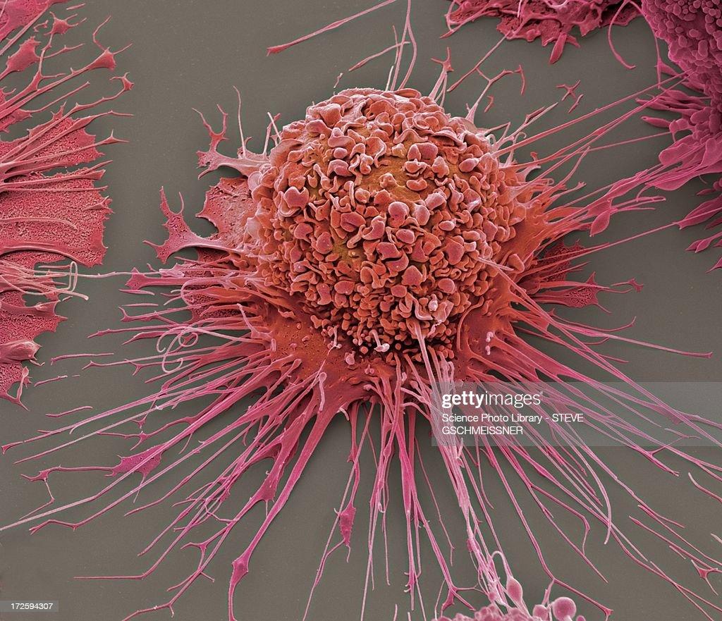 Activated macrophage, SEM : Stock Photo
