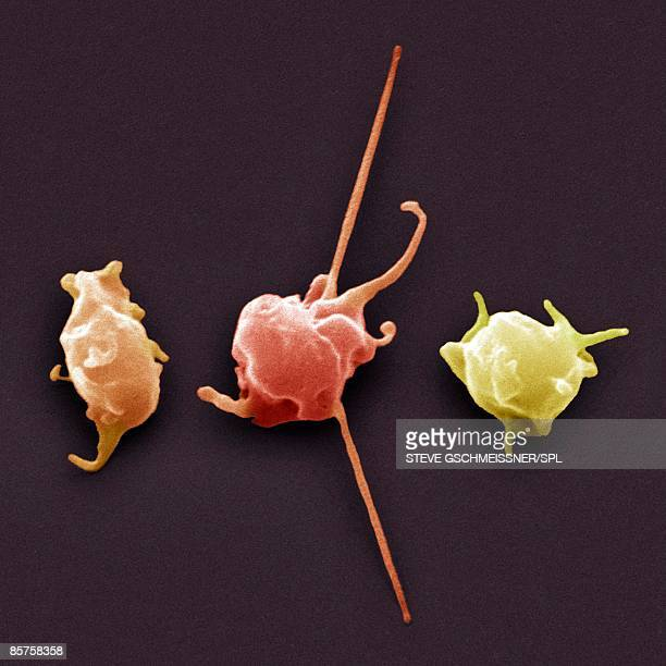 Activated platelets, colored scanning electron micrograph (SEM)