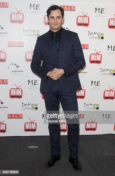 Actor Asier Etxeandia attends MIM awards photocall at ME hotel on December 1 2014 in Madrid Spain