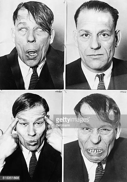 Actor Lon Chaney poses as a blind man, real life, odd facial expressions.