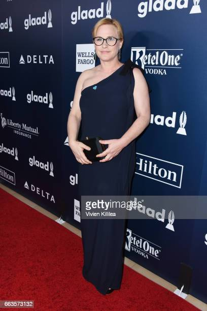 Actor Patricia Arquette attends the 28th Annual GLAAD Media Awards in LA at The Beverly Hilton Hotel on April 1 2017 in Beverly Hills California