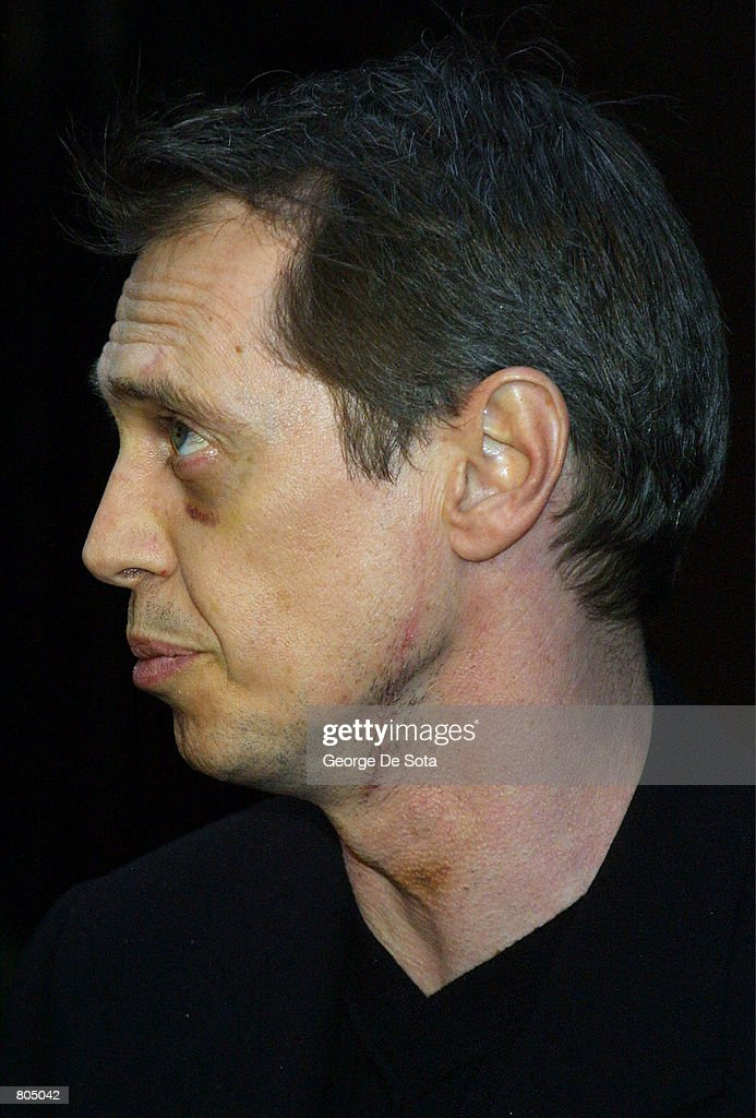 Actor Steve Buscemi Shows The Effects Of A Stab Wound To His Head And Neck During