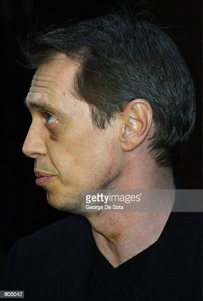 Actor Steve Buscemi shows the effects of a stab wound to his head and neck during a recent brawl in a North Carolina bar as he attends a cocktail...