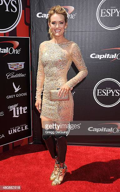Actress Amy Purdy arrives at The 2015 ESPYS at Microsoft Theater on July 15 2015 in Los Angeles California