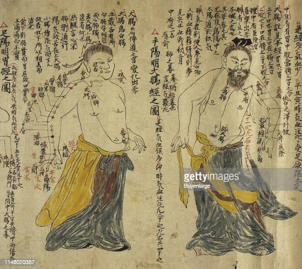 Acupuncture a form of alternative medicine and a key component of traditional Chinese medicine involving thin needles being inserted into the body
