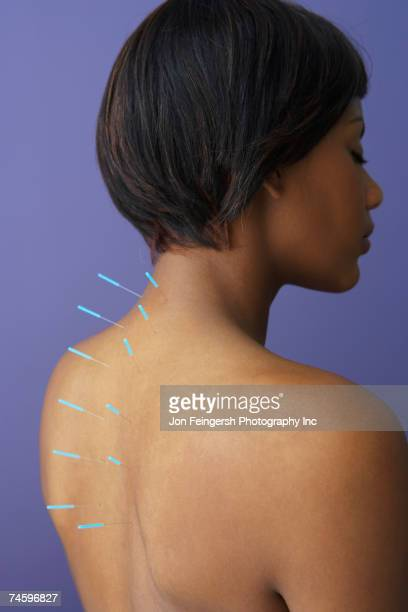 acupuncture needles in african woman's back - acupuncture needle stock pictures, royalty-free photos & images
