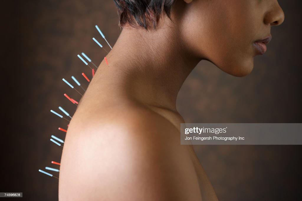 Acupuncture needles in African woman's back : Stock Photo