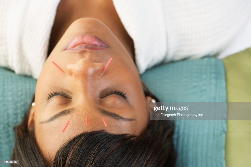 Acupuncture needles in African woman's face : Stock Photo