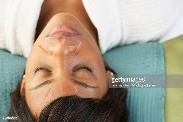 acupuncture needles in african woman's face - acupuncture stock pictures, royalty-free photos & images