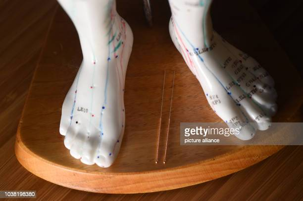 Acupuncture needles pictured between the feet of an acupuncture model in Berlin Germany 25 February 2016 Photo JENS KALAENE/dpa | usage worldwide
