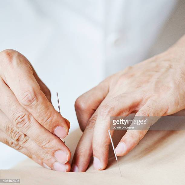 acupuncture - acupuncture needle stock pictures, royalty-free photos & images