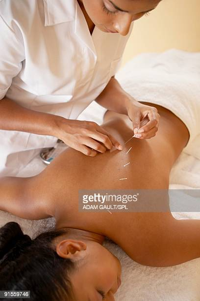 acupuncture - acupuncture stock pictures, royalty-free photos & images