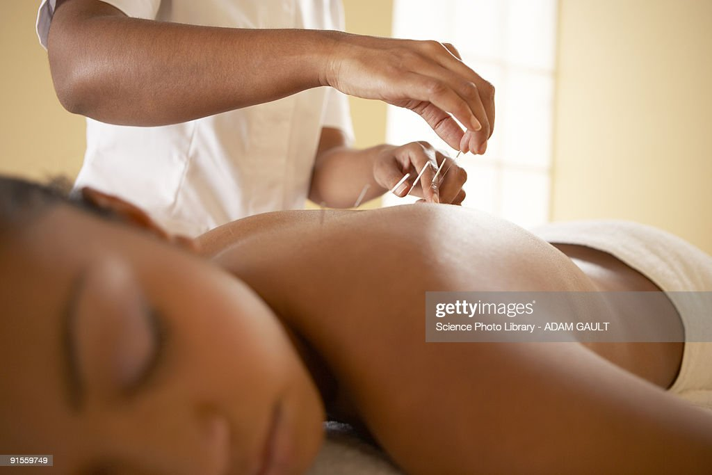 Acupuncture : Stock Photo