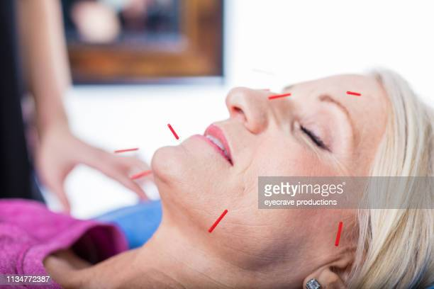 acupuncture therapist practitioner at wellness center alternative medicine and care facility - acupuncture needle stock pictures, royalty-free photos & images