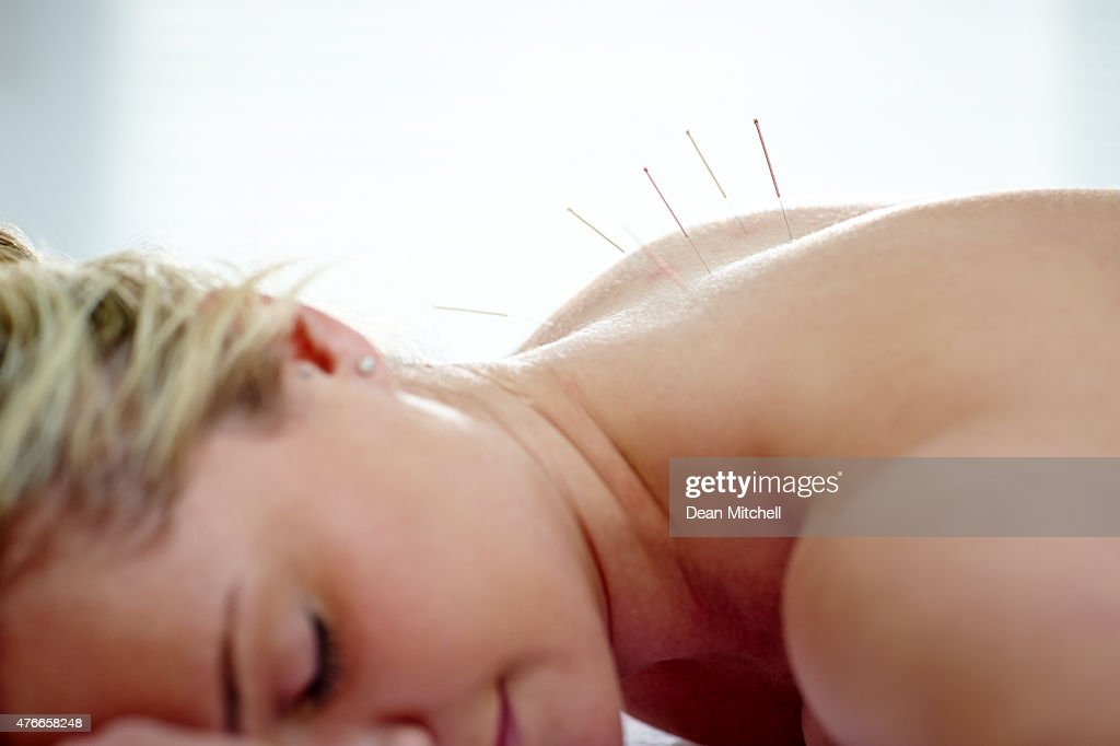 Acupuncture therapy for health and beauty : Stock Photo