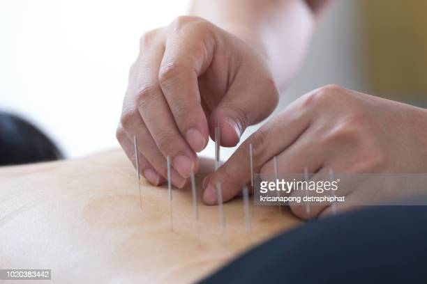 acupuncture woman - acupuncture stock pictures, royalty-free photos & images