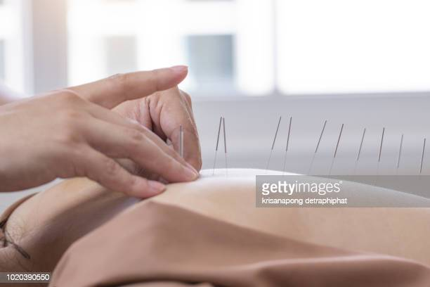 acupuncture woman, spa ,back spa - acupuncture needle stock pictures, royalty-free photos & images