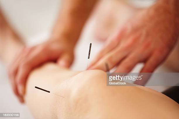 Acupuncturist giving treatment