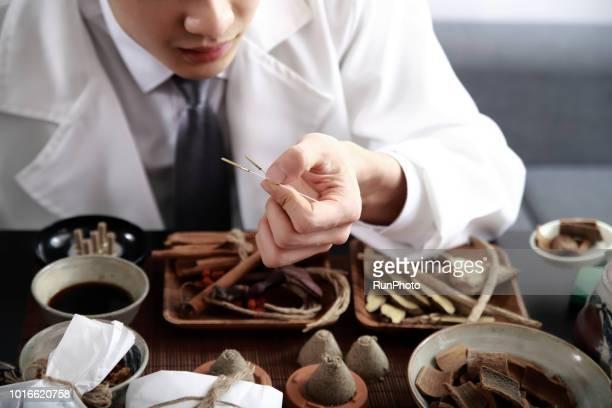 Acupuncturist holding acupuncture needles