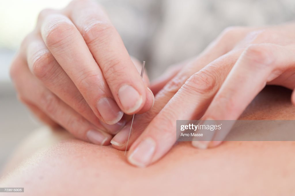 Acupuncturist inserting acupuncture needles into patients skin : Stock-Foto