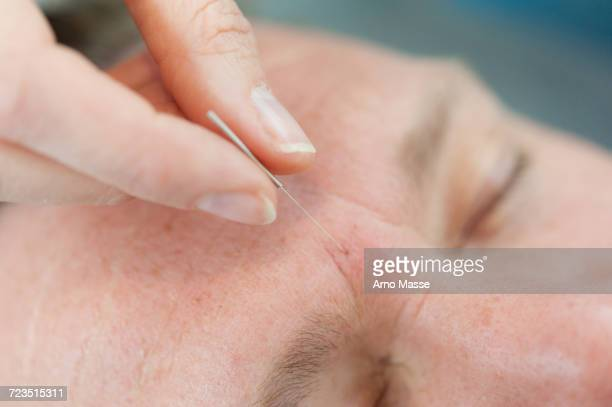 acupuncturist inserting acupuncture needles into patients skin - acupuncture needle stock pictures, royalty-free photos & images